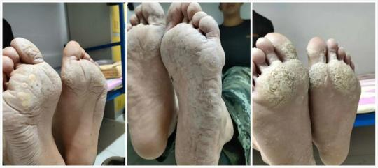 这双脚,淌过没腰洪水,是子弟兵的一枚军功章